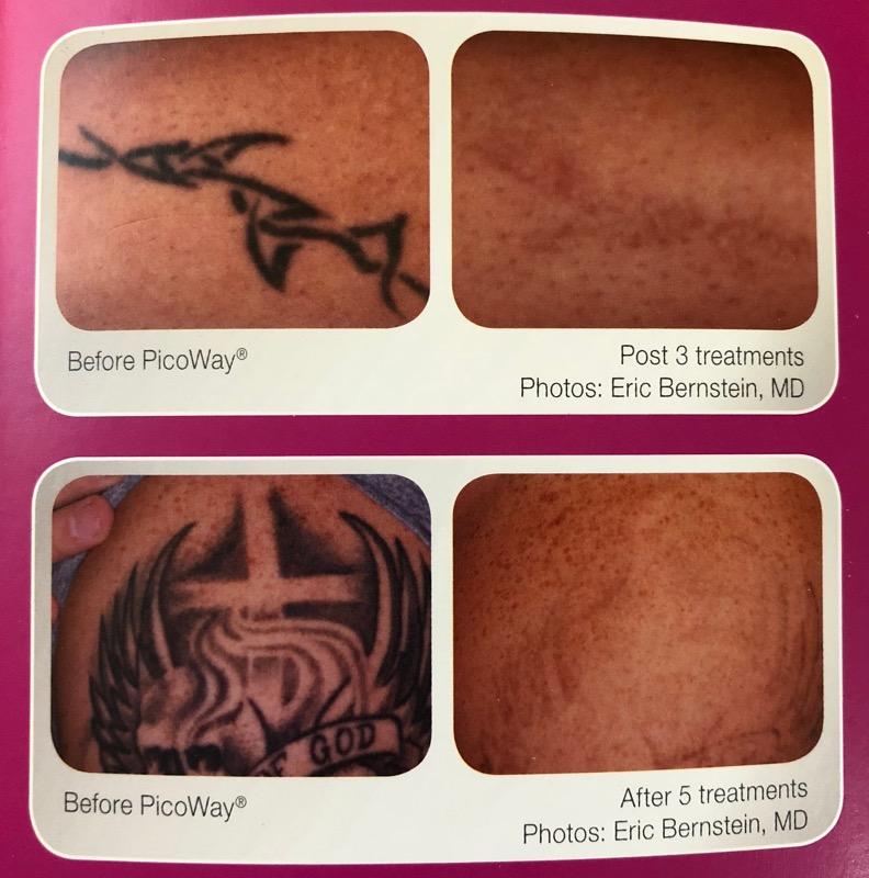 Williamsville Med Spa offers 'ink erasing' procedure